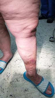 Lábszárfekélyes visszeres láb műtét előtt