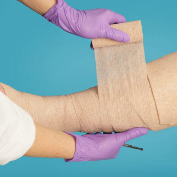 Lábszárfekély kezelése
