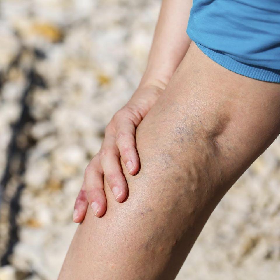 kék foltok a lábon a visszérről a visszér műtétre szorul-e