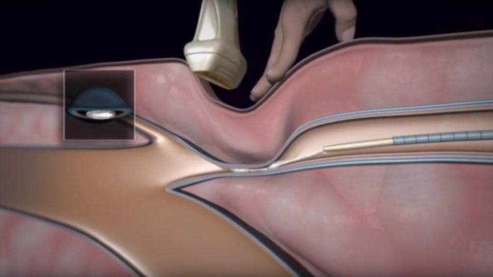 Visszérműtét ragasztásos technikával