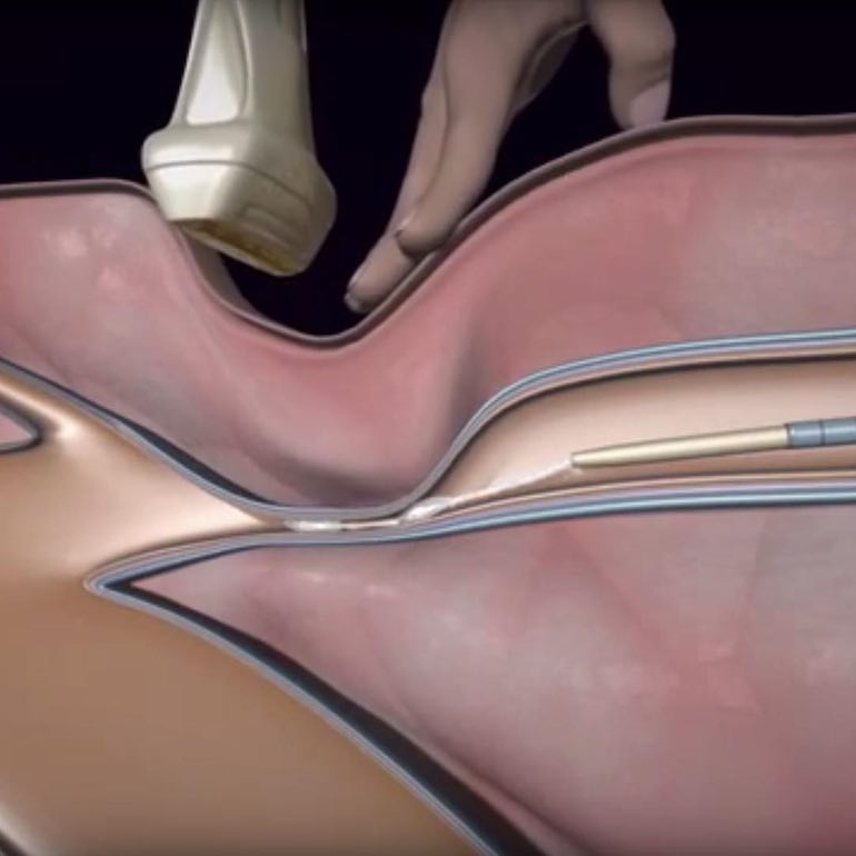 Új technika a visszér kezelésére Műtéti tájékoztató