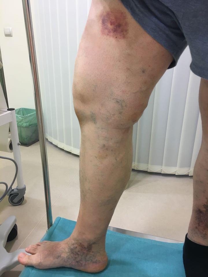 varrat vérzés visszérműtét után