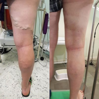 Visszérműtét előtt és után